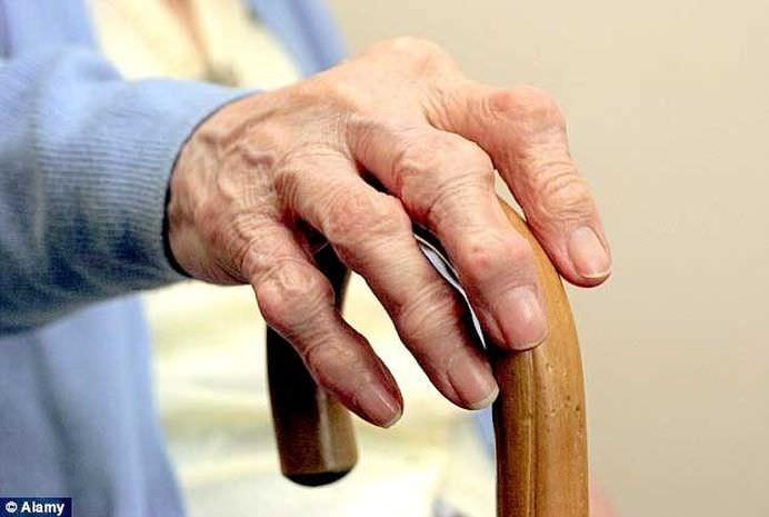 5 dintre cele mai bune remedii naturale pentru artrită şi inflamaţii
