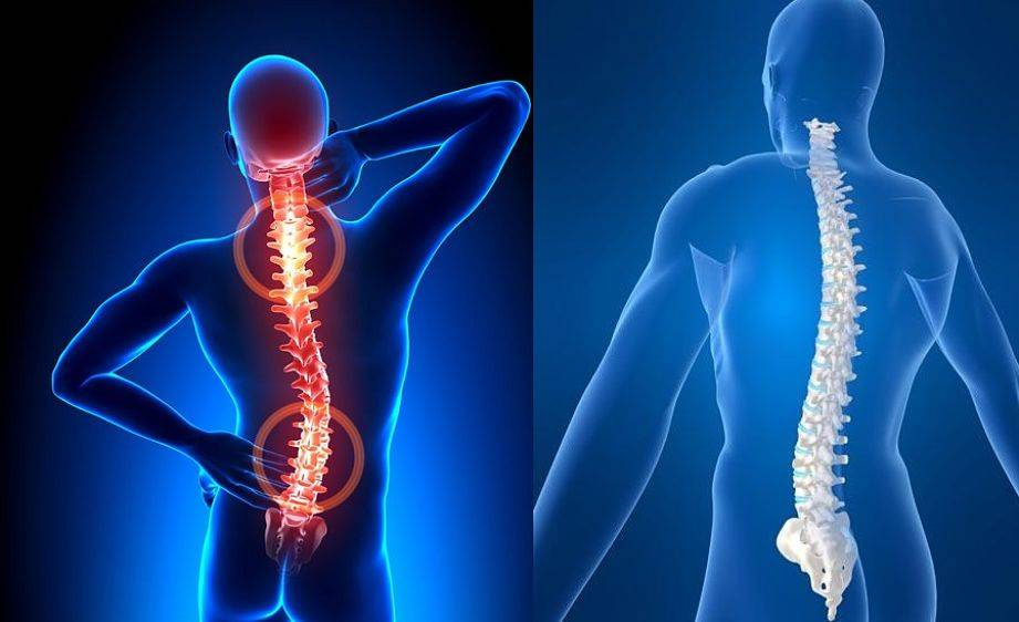 durerile de cap ?i coloana vertebrala