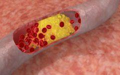 Cel mai eficient remediu natural pentru colesterol si hipertensiune!