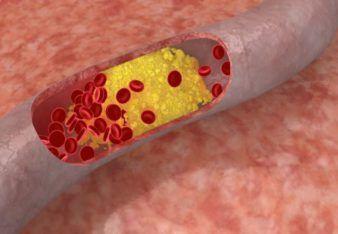 colesterol_opt