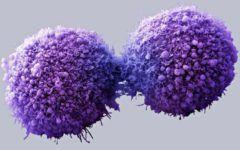 Descoperire de ultima ora! Cancerul care ucide o persoana pe ora poate fi blocat!